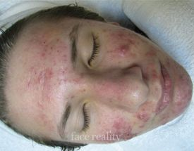 face acne before treatment