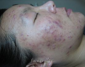 facial acne before treatment