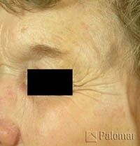 old woman with healed age spots