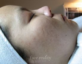 facial acne after treatment