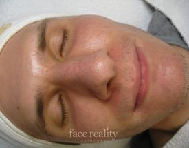 face acne after treatment