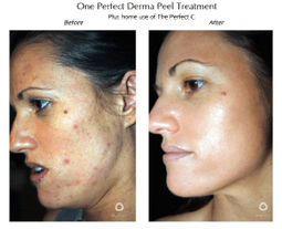 derma peel treatment before and after