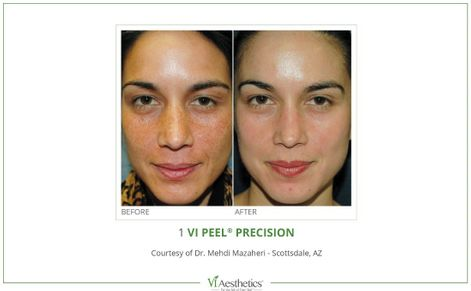 before and after vi precision plus treatment