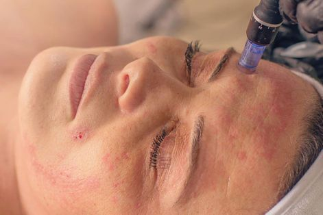 person receiving microneedling treatment