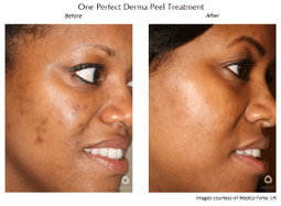 woman receiving derma peel treatment before and after